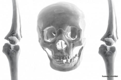 skull-141285643966x-001